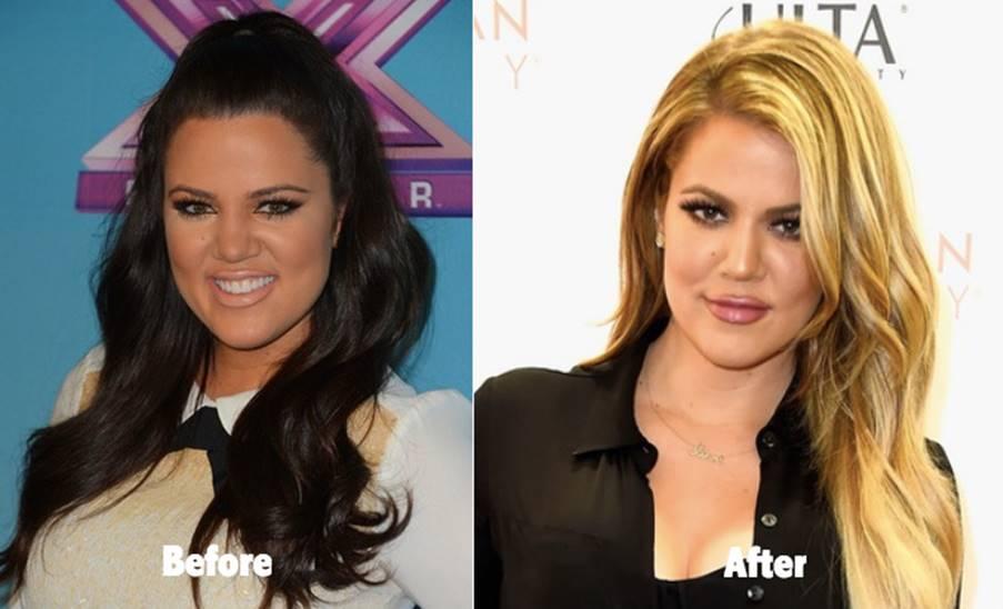 Khloe Kardashian's Plastic Surgery